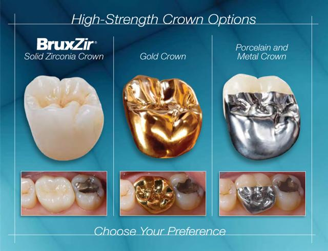 high-strength-crown-options_lores